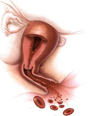 vaginal bleeding after delivery