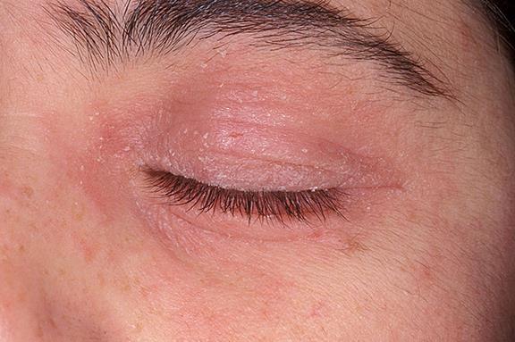 Eye Rash due to lash lifer product