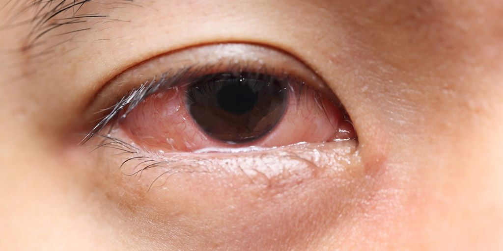 Inflammation in eye due of side effects of eye lift product