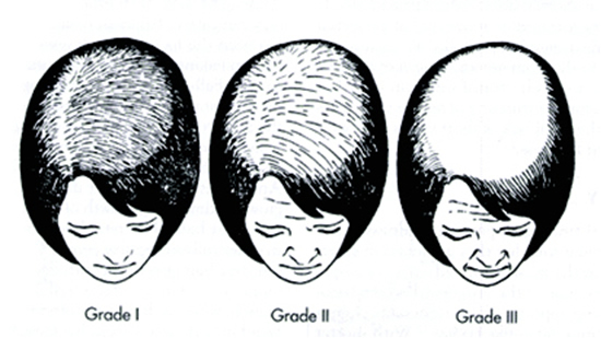 type of hair fall