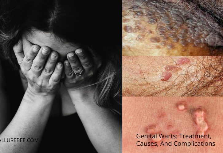 Genital Warts Treatment