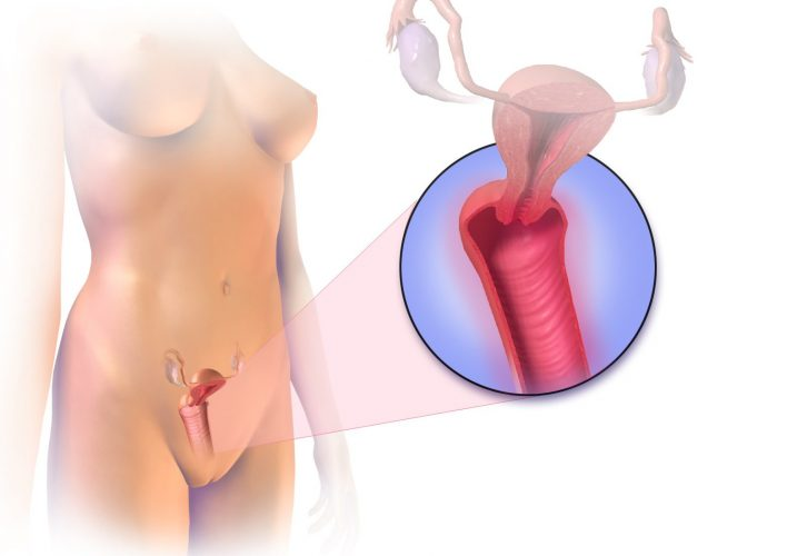 Vaginitis treatments