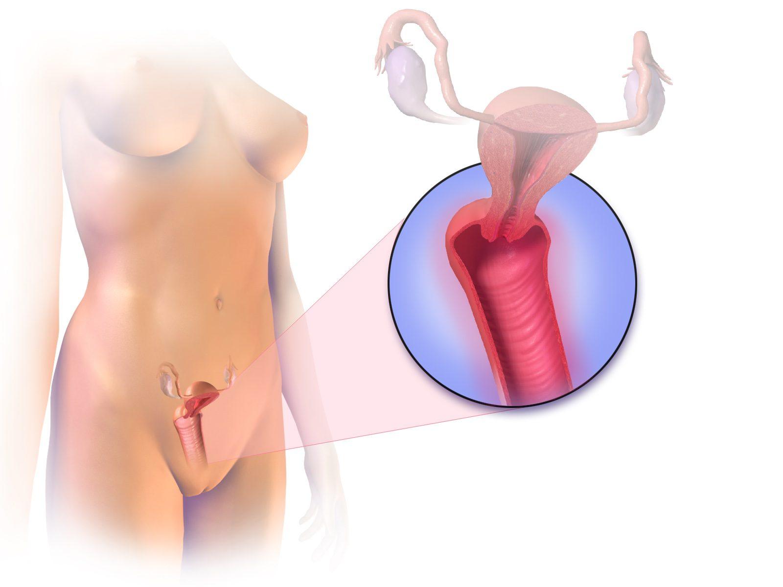Vaginitis treatments