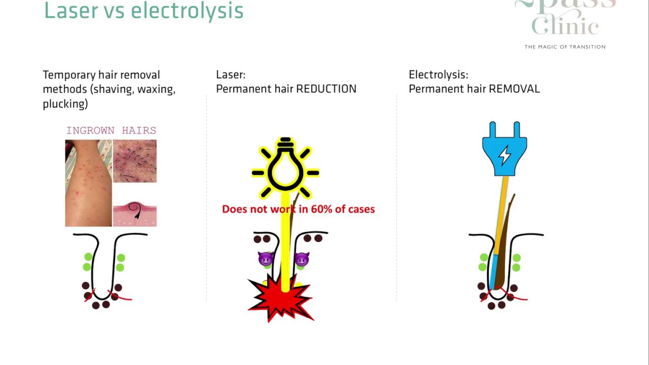 Electrolysis vs Laser Hair Removal