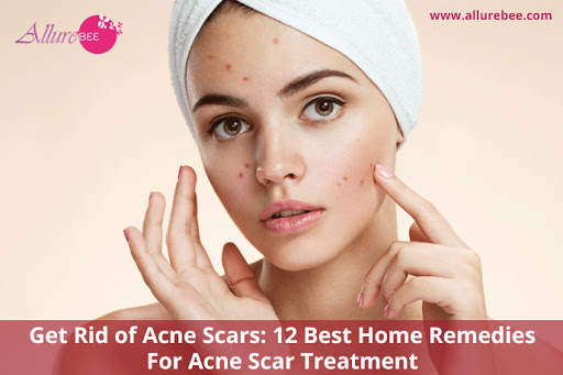 Get Rid of Acne Scars: 12 Best Home Remedies For Acne Scar