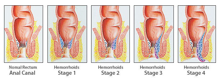 The Four Stages of Hemorrhoids