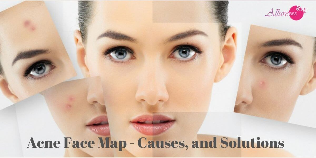 Acne Face Mapping Causes Solutions And Treatments Allurebee