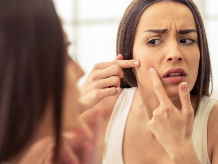 Deal with a pesky pimple in the right way