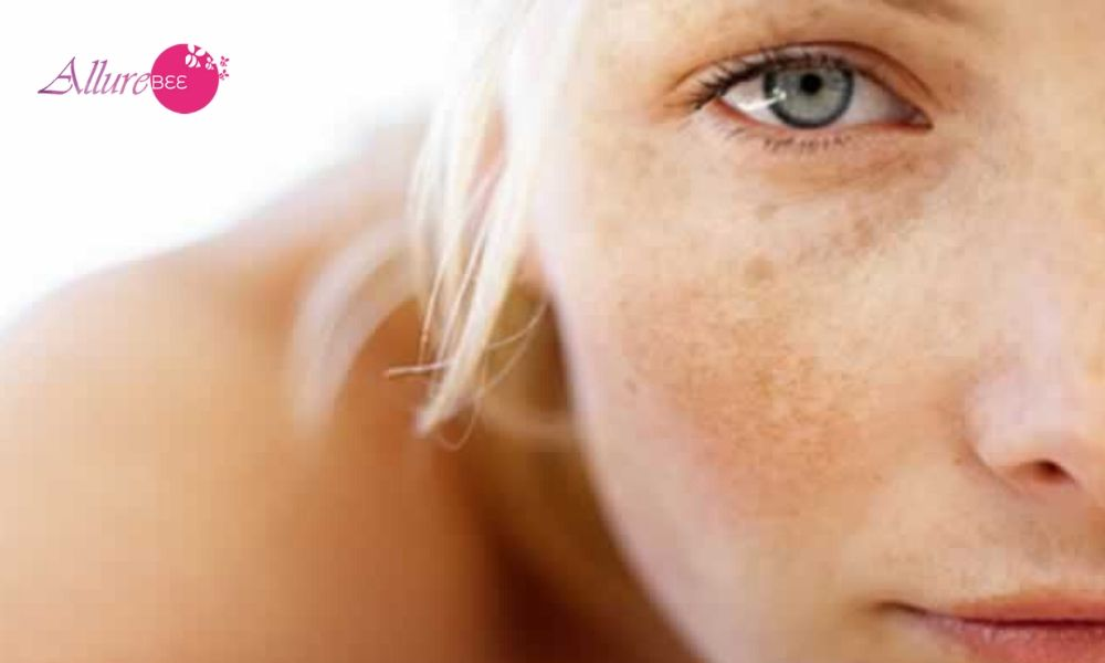 Hypopigmentation Of Skin: Causes And Treatments