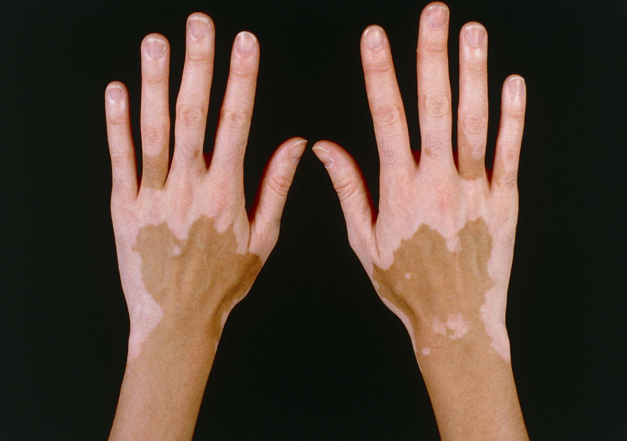 Hypopigmentation Of Skin