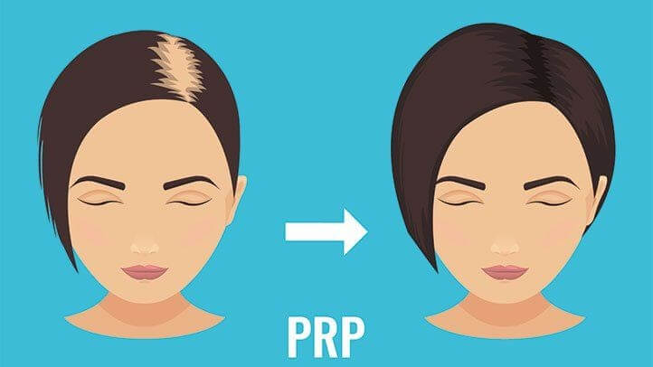 Benefits of PRP for hair loss