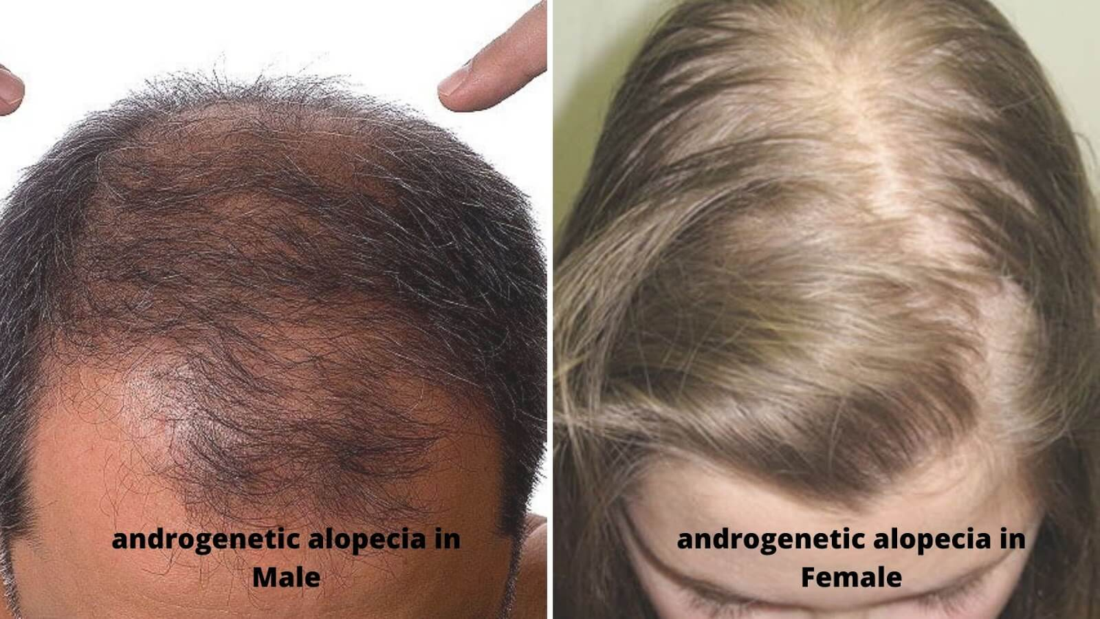 What is androgenetic alopecia?